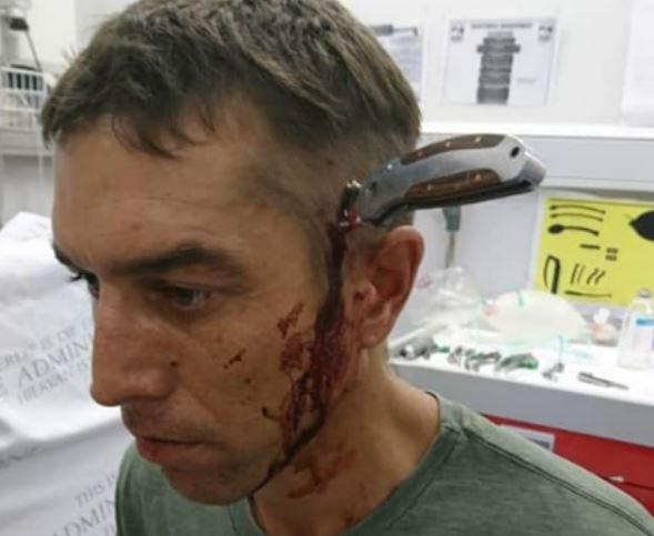 डोक्यात सहा इंच चाकू घुसला, तरीही सायकल चालविली