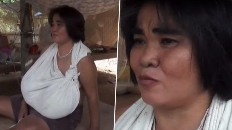 चमत्कारिक वेगाने वाढत आहेत 'या' महिलेचे Breast, चालण्यासाठी सुद्धा घ्यावा लागतो कुबड्यांचा आधार (Watch Video)