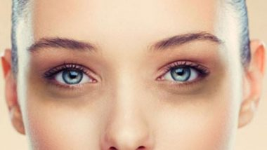 डोळ्यांखालील काळी वर्तुळे घालवण्यासाठी हे आहेत 5 सोपे उपाय