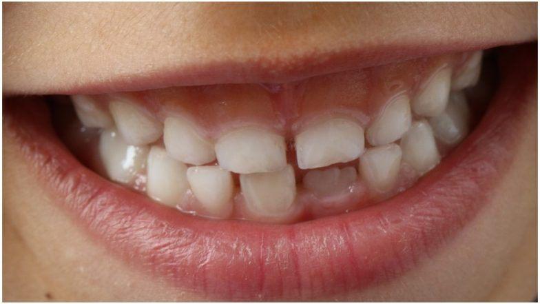 चेन्नई: 7 वर्षांच्या मुलाच्या तोंडातून डॉक्टरांनी काढले तब्बल 526 लहान-मोठे दात; पहा फोटोज