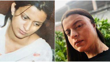 मुलाला नकार दिल्याने Kangana Ranaut च्या बहिणीवर झाला होता ऍसिड अटॅक; 54 सर्जरी नंतरही जखमा तशाच