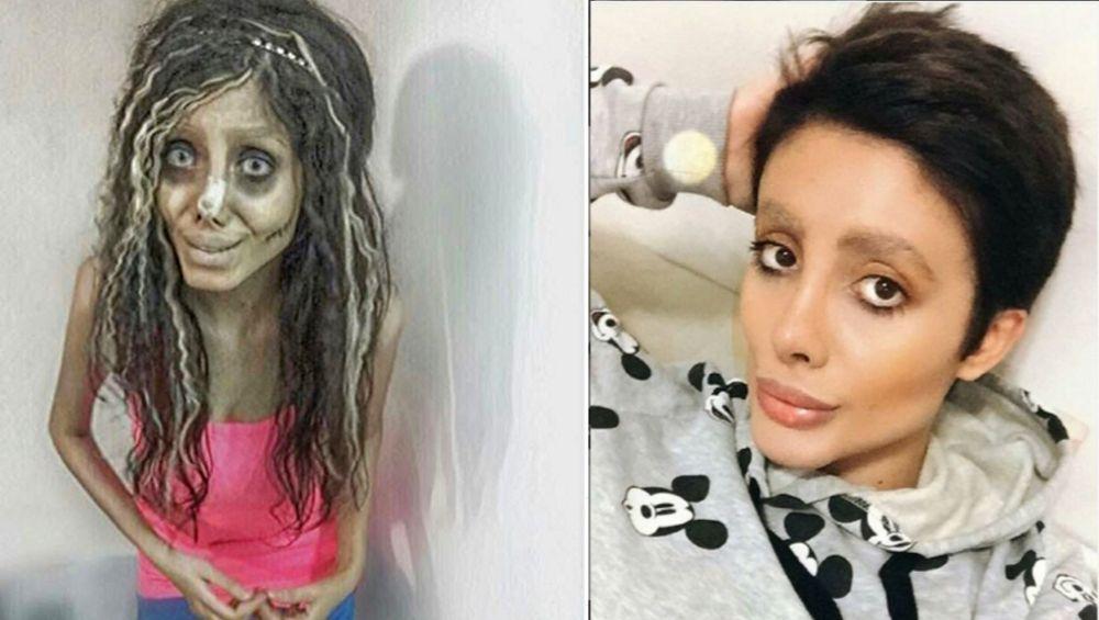 अँजेलीना जोली सारखे बनण्यासाठी केल्या अनेक शस्त्रक्रिया; चेहरा विद्रूप झाल्यावर सरकारने केली Insta-Star ला अटक (Photos)