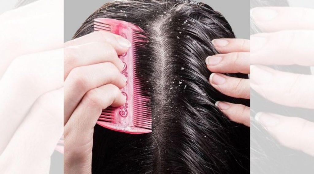Winter Hair Care Tips: थंडीत केसांमध्ये होणारा कोंडा दूर करण्यासाठी करा हे '5' नैसर्गिक उपाय