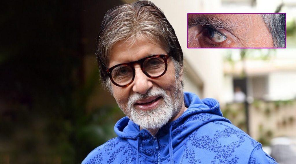 अमिताभ बच्चन यांच्या डोळ्यात हा काळा ठिपका कसला?; बिग बींनाही वाटली चिंता, तत्काळ घेतला डॉक्टरांचा सल्ला