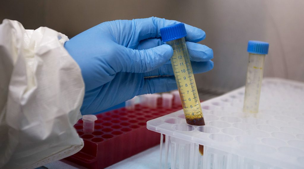 मुंबई: नायर, कस्तुरबा हॉस्पिटल मध्ये Convalescent Plasma Trials साठी ICMR कडून परवानगी