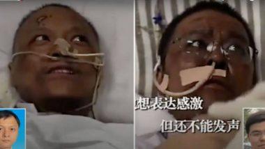 Coronavirus: चीनसमोर नवे आव्हान उभे; कोरोना व्हायरसच्या उपचारानंतर वूहानच्या डॉक्टरांची त्वचा पडली काळी