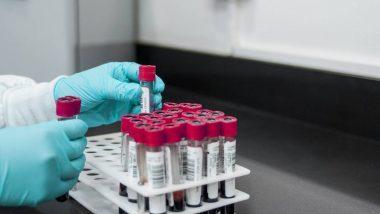 COVID-19 Testing: प्रिस्क्रिप्शन शिवाय On-Demand कोरोना चाचणी करता येणार; केंद्रीय आरोग्य मंत्रालयाकडून टेस्टिंग नियमात मोठा बदल