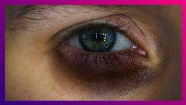 Home Remedies For Remove Dark Circles: डोळ्यांखालचे काळी वर्तुळ घालवण्यासाठी करा 'हे ' 5 महत्वाचे घरगुती उपाय