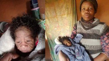 South Africa: महिलेने जन्म दिला चक्क 60 वर्षांची म्हातारी दिसणाऱ्या बाळाला; कुटुंबीय झाले स्तब्ध, जाणून घ्या काय आहे प्रकरण