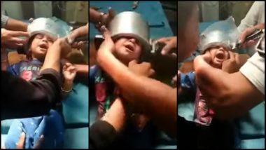 Head Stuck Inside Pressure Cooker: प्रेशर कुकरमध्ये अडकले लहान मुलाचे डोके, डॉक्टरांनी केली सुटका (Watch Video)