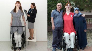 Tallest Woman Alive: तुर्कीची 24 वर्षीय Rumeysa Gelgi ठरली सर्वात उंच जिवंत असलेली महिला;7'7 इंच आहे उंची, फिरण्यासाठी करते व्हीलचेअरचा वापर